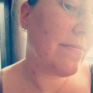 Visanne (endometriosis medication) side effect - acneVisanne acne
